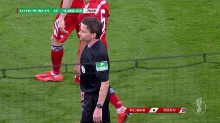[进球视频] 胡梅尔斯送点!格拉泽尔点射成功戴帽扳平比分